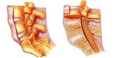 【図1】腰椎の構造