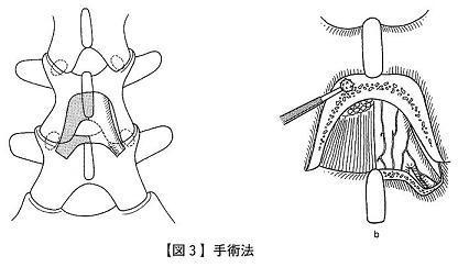 【図3】手術法