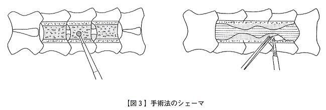 【図3】手術法のシェーマ