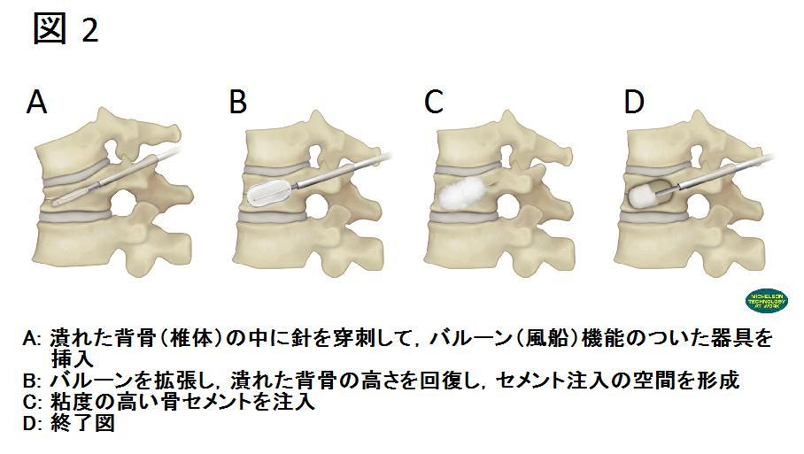 脊椎圧迫骨折に対する後弯形成術(バルーンカイフォプラスティ)